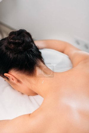 partial view of woman having acupuncture therapy in spa salon