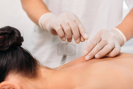 cropped shot of cosmetologist putting needles on womans back during acupuncture therapy in spa salon