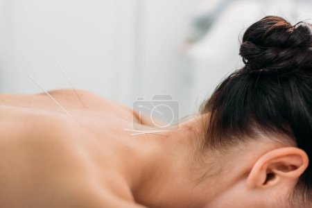 partial view of woman with needles on body having acupuncture therapy in spa salon