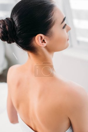 woman having acupuncture therapy in spa salon