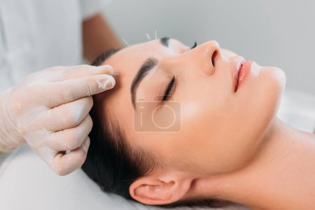 partial view of cosmetologist putting needles on womans forehead during acupuncture therapy in spa salon