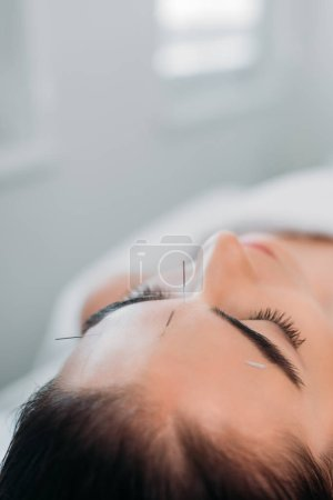 woman with needles on face having acupuncture therapy in spa salon