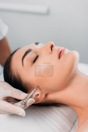 partial view of cosmetologist putting needle on womans face during acupuncture therapy in spa salon