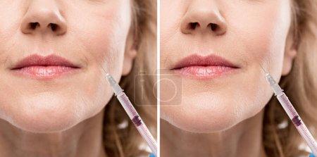 Photo pour Collage de femme d'âge moyen recevant l'injection de beauté avant et après la retouche - image libre de droit
