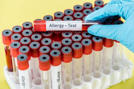 Photo for Cropped view of doctor holding sample with allergy test inscription above empty test tubes isolated on yellow - Royalty Free Image