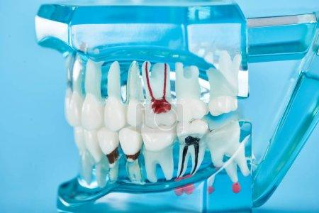 Photo pour Foyer sélectif du modèle de dents avec les racines dentaires rouges dans les dents blanches isolées sur le bleu - image libre de droit