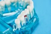"""Постер, картина, фотообои """"селективный фокус модели зубов с красным зубным корнем, изолированным на синем"""""""