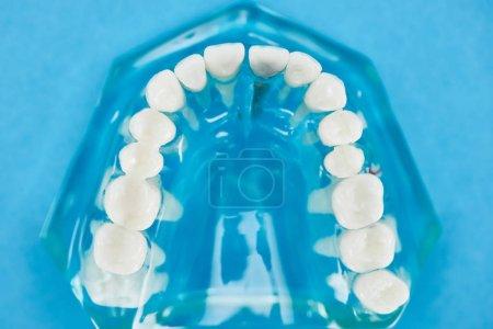 Photo pour Mise au point sélective du modèle de dents avec la mâchoire saine sur le bleu - image libre de droit