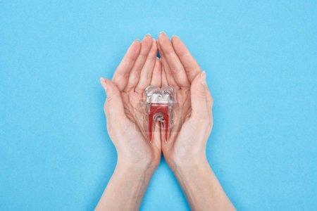 Photo pour Vue recadrée de modèle de dent de fixation de femme avec la racine dentaire rouge d'isolement sur le bleu - image libre de droit