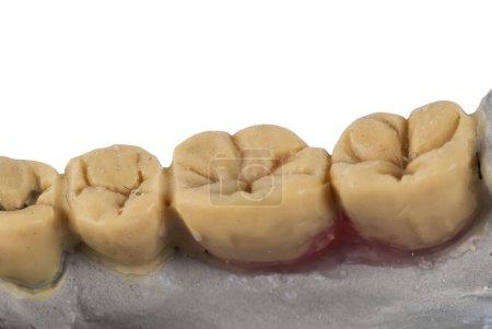 Dentist jaw isolated on white background