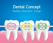 Teeth with Colourful braces Dental care concept Realistic illustration Vector