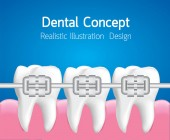 Teeth with Metal braces Dental care concept Realistic illustration Vector