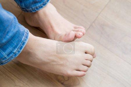 Photo pour Gros plan de l'homme athlète pied avec concept de santé - image libre de droit