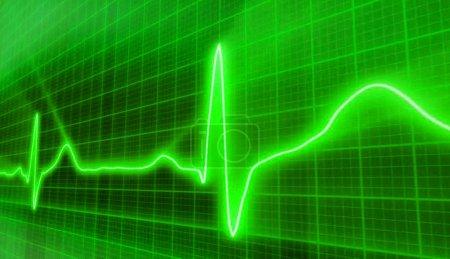 Photo pour Battements cardiaques Cardiogramme vert - image libre de droit