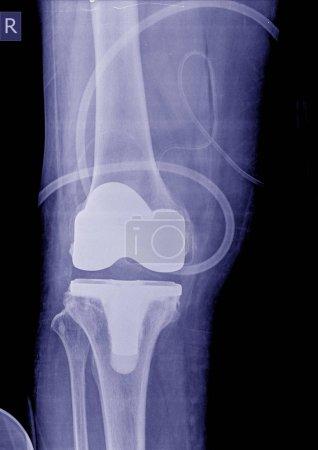 Foto de Rayos x de imagen post operación total de rodilla reemplazo rodilla derecha - Imagen libre de derechos