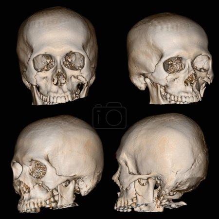 Photo pour Image de rendu 3D d'un crâne patient avec traumatisme crânien, montrant la compression ou la dépression, la fracture du rebord orbitaire fois et fracture zygomatique gauche. - image libre de droit