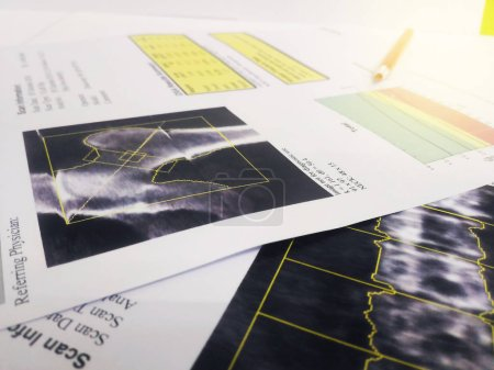 Photo for Soft and blurry image:Bone Densitometry hip and lumbarspine Result.on bright background - Royalty Free Image