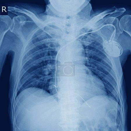 Foto de Imagen de rayos x de marcapasos permanente del implante en el pecho del cuerpo. - Imagen libre de derechos