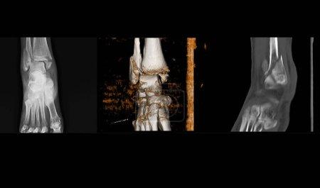 Photo pour Radiographie et tomodensitométrie de la cheville montrant une fracture spirale du péroné distal au niveau de la syndesmose avec un déplacement minimal . - image libre de droit