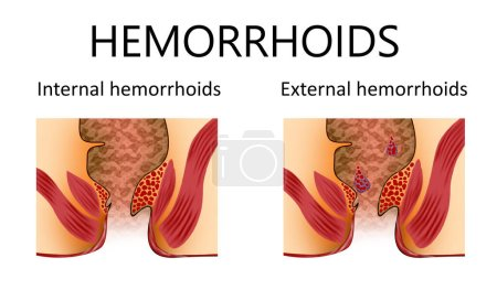 Hemorrhoid types. Unhealthy lower rectum with infl...