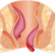 Hemorrhoid. Unhealthy lower rectum with inflamed v...