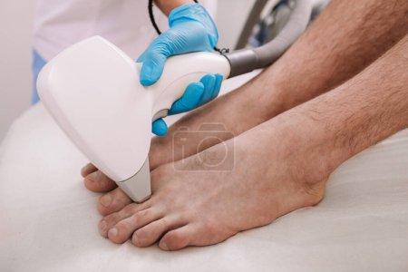 Photo pour Coupé coup d'un homme obtenant la procédure d'épilation au laser sur ses orteils - image libre de droit