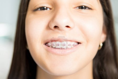 portrait of smiling teenage girl wearing braces at dental clinic
