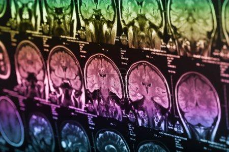 Foto de Rayos x del cerebro humano, closeup imagen - Imagen libre de derechos