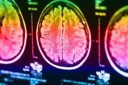 Medical x-ray of human brain, closeup image