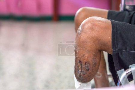 Photo pour Ci-dessous le patient amputé du genou assis sur une chaise roulante, dispositif de Bk préparé, souche bandage et la force de la jambe - image libre de droit