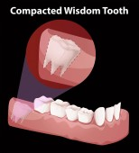 Compacted Wisdom Tooth Diagram illustration