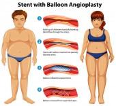 Stent with balloon angioplasty illustration
