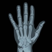 Realistic x-ray shot of human palm