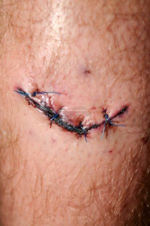 Photo pour Wide fresh blooded injury wound on the tibial bone of the leg. Sticking stitches to hold the cut. - image libre de droit