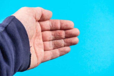 Photo pour Le palmier ou volaire, qui est la région centrale de la partie antérieure de la main, situé superficiellement au métacarpe. La peau dans ce domaine contient des papilles cutanées pour augmenter la friction, comme - image libre de droit