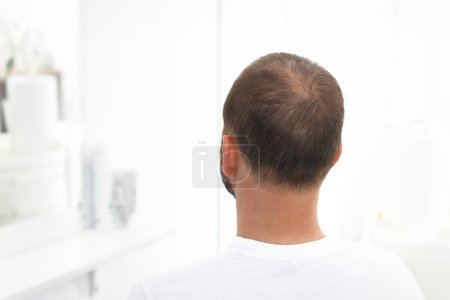 Alopecia. The head of a man with thinning hair
