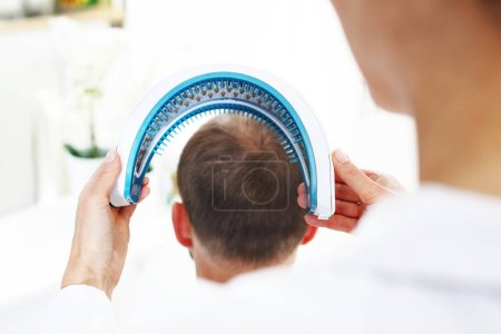 Laser irradiation of the scalp. Care treatment for strengthening hair onions .