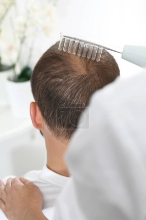Treatment against hair loss. Oxygen mesotherapy. The head of a man with thinning hair during a care treatment