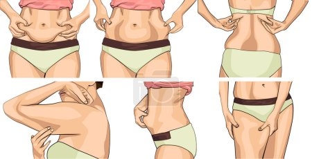 Set women with fat belly. The girl clamps the fold...
