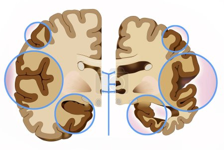 Photo for This illustration shows the comparison of two halves of the brain, a healthy half and another with Alzheimer's, in this we see that the cerebral cortex contracts, this brain reduction causes damage to the brain used to think, plan and remem - Royalty Free Image
