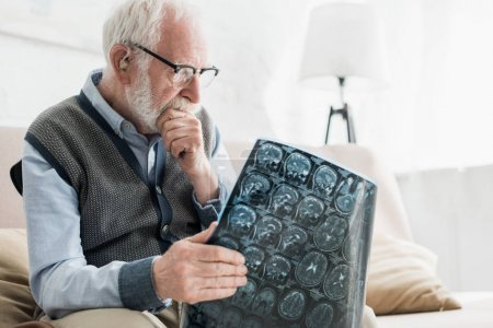 Photo for Concentrated senior man in glasses looking at x-ray picture - Royalty Free Image