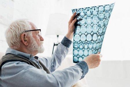 Foto de Tranquilo hombre mayor en gafas mirando la imagen de rayos x - Imagen libre de derechos