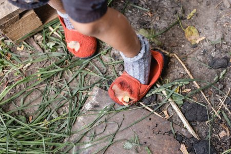 cropped view of poor kid standing in ripped shoes