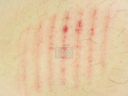 Photo pour Scratch de close-up cicatrice sur le corps humain. - image libre de droit