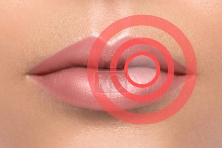 Female lips with red circles. Affected or problem area. Healthcare or beauty concept.