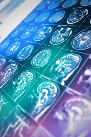 Photo pour IRM scan de la tête du patient dans les rayons de lumière colorée, fond de travail scientifique et pratique, nouvelles, page web - image libre de droit