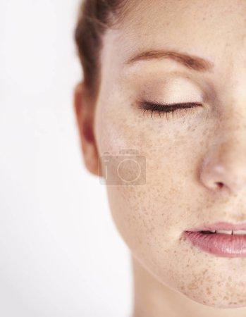 Photo pour La moitié du visage de la femme avec des rousseurs - image libre de droit