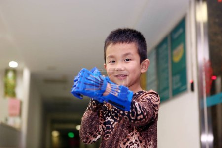 Foto de Six-year-old Xiao Cheng who lost the five fingers of his left hand tries out an artificial limb made from 3D printing at Wuhan Union Hospital in Wuhan city, central China's Hubei province, 28 May 2015 - Imagen libre de derechos