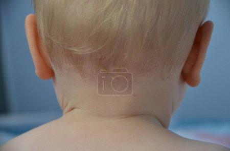 Foto de Hemangioma infantil pálido en el cuello del bebé aislado en el fondo azul - Imagen libre de derechos
