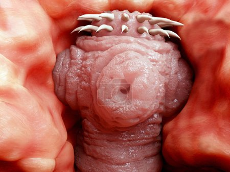 Tapeworm head attached to the intestine. 3D rendering. Tapeworms are a species of parasitic flatworms. They live in the digestive tracts of vertebrates. Illustration